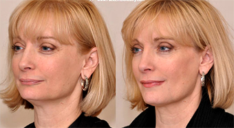 dentalni face lift 01