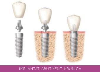 implantat, abutment, krunica