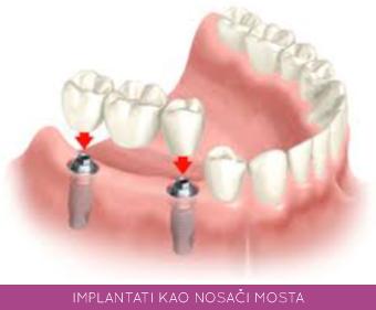 implantati kao nosaci mostova