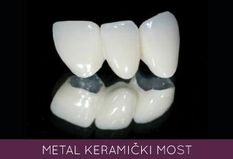metal keramicki most